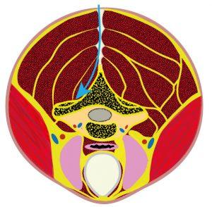 Grafik zur Erklärung der Dekompression der Halswirbelsäule