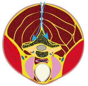 Grafik von Dr. Stephan Emich Wirbelsäulenspezialist, zur Erklärung einer Operation der halswirbelsaeule