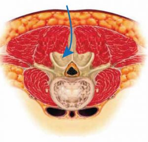 Grafik zur Erklärung bei Bandscheibenoperation bezw. Wirbelsäulenoperation