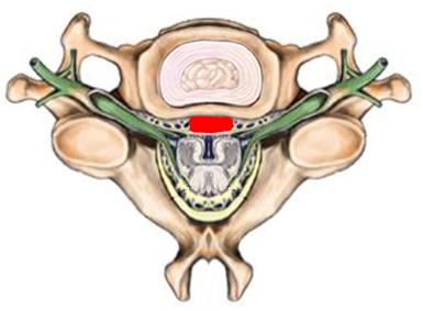 Bandscheibenvorfall der Halswirbelsäule. Illustration zur Erklärung bei Operation der Bandscheiben