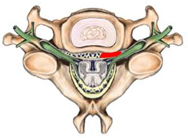 Halswirbelsäule - Illustration eines Bandscheibenvorfall der Halswirbelsäule