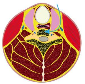 Grafik Bandscheibenoperation der Halswirbelsäule